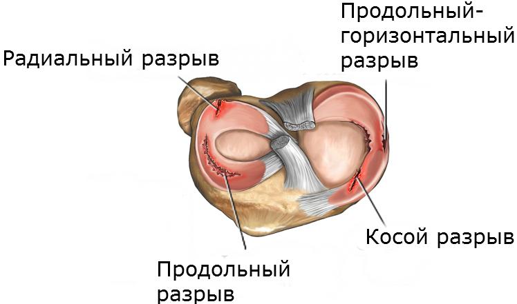 Разрыв рогов мениска коленного сустава лечение