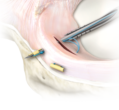 meniscal_repair_technique_0-large