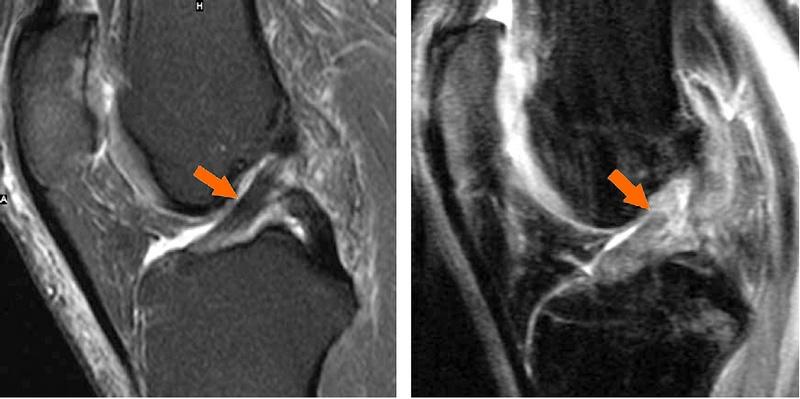 Повреждения боковых связок, нестабильность локтевого сустава