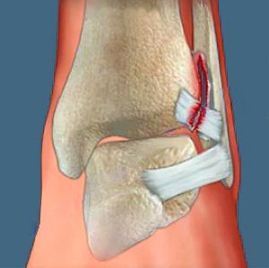 22.локтевой сустава строение, форма, движения, кровоснабжение.мышцы производящие движения