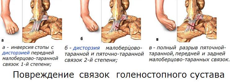 3.-Stepeni-povrezhdeniya-golenostopnyih-sustavov (1)