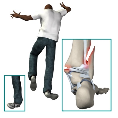 adult_ankle_fx_causes02