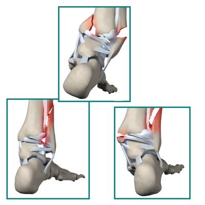 Пронационное повреждение голеностопного сустава тутор на лучезапястный сустав с ки