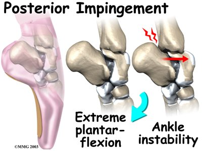 ankle_impingement_causes04