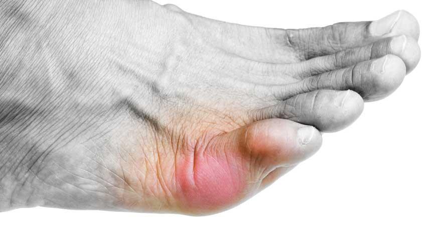 bunionette-pathologie-traitement-chirurgie-du-pied-bordeaux