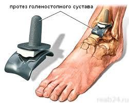 chto-takoe-slingi-dlya-novorozhdennyh-foto15191
