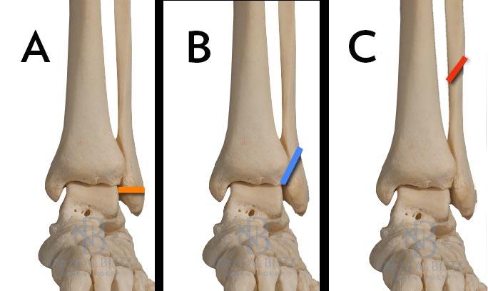 Переломы лодыжек повреждения голеностопного сустава сильный ушиб лучезапястного сустава
