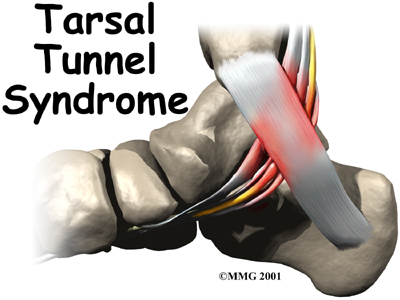 foot_tarsal_tunnel_intro01