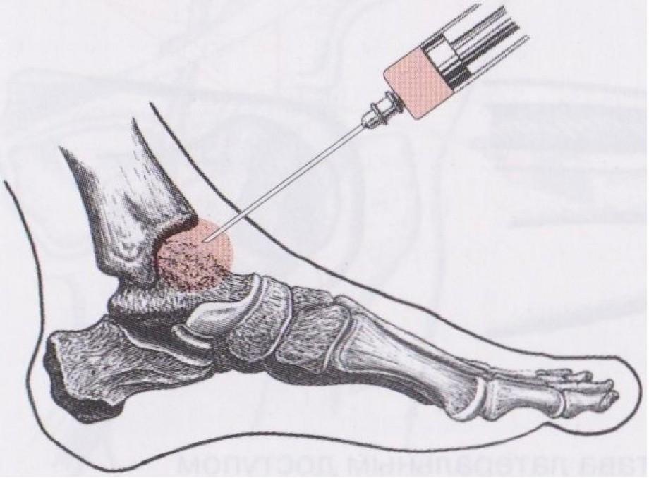 lechenie-artroza 2