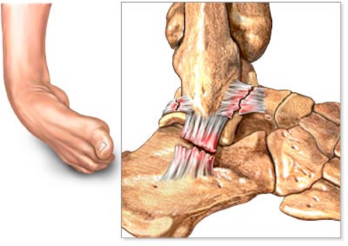 ligament-1
