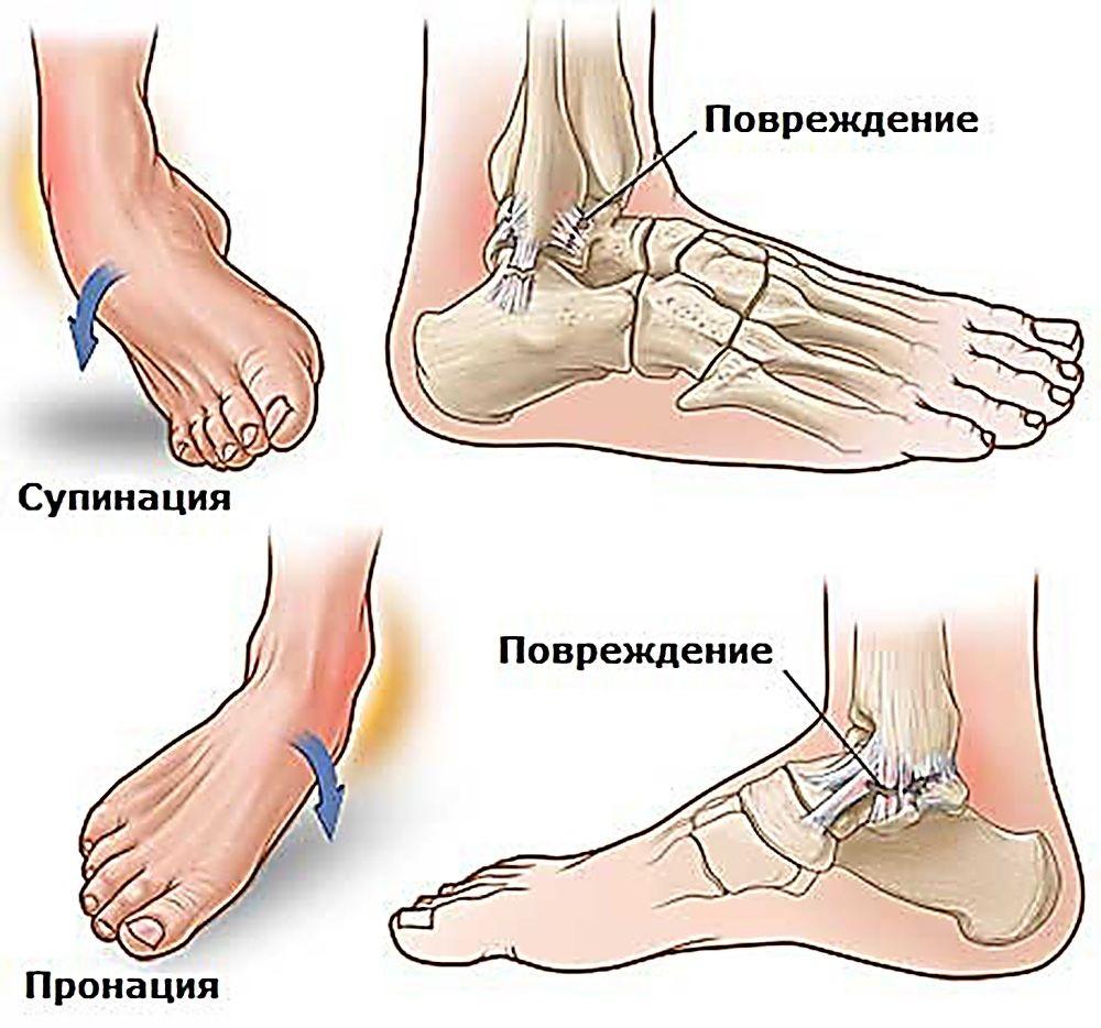 povrezhdeniya-golenostopnogo-sustava2
