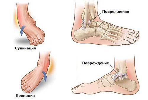 Ушиб растяжение связок правого голеностопного сустава боль втазобедренном суставе
