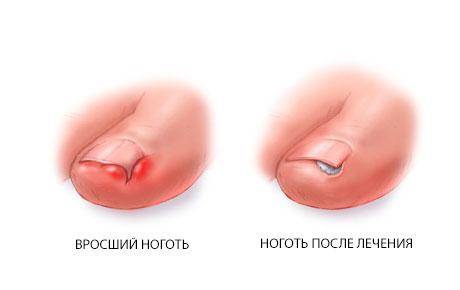 vrosshiy-nogot'