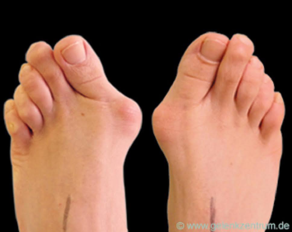 yanlis-ayakkabi-kemik-cikintisina-yol-aciyor-17039