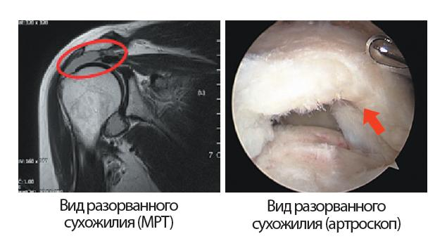 Symptoms_of_shoulder_tendon_rupture