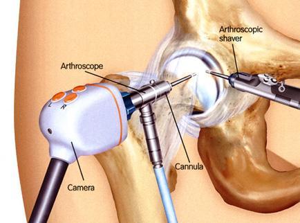artroscopia-anca