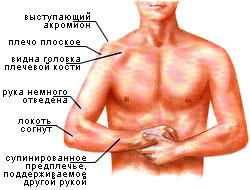 perelom-plechevogo-sustava-2
