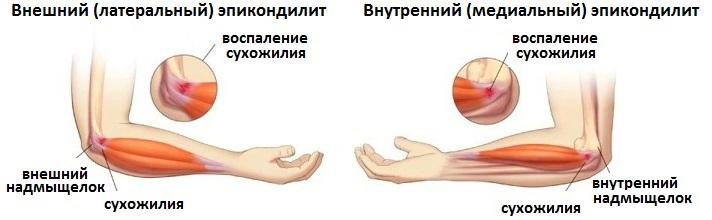Внутренний эпикондилит на коленном суставе воспаление нервов в суставах