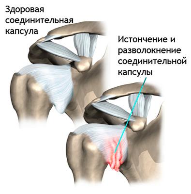 zdorovaya-i-vospalennaya-kapsula-plecha