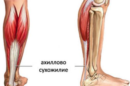 achilles-tendon31