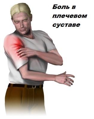 bol-tendinit