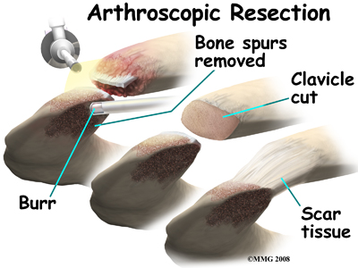 shoulder_acromioclavicular_arthrosis_surgery03