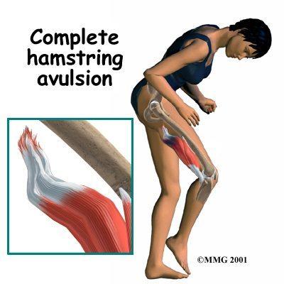Blog-Image-Complete-Hamstring-Avulsion